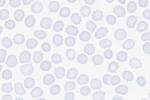 acantocytes-PB-01