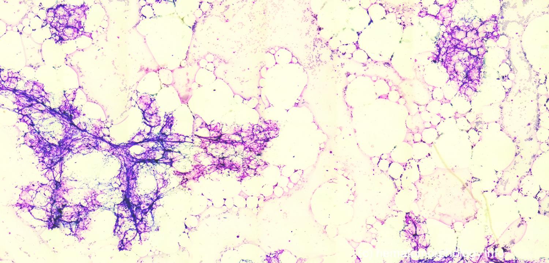 egy aplastische anemie