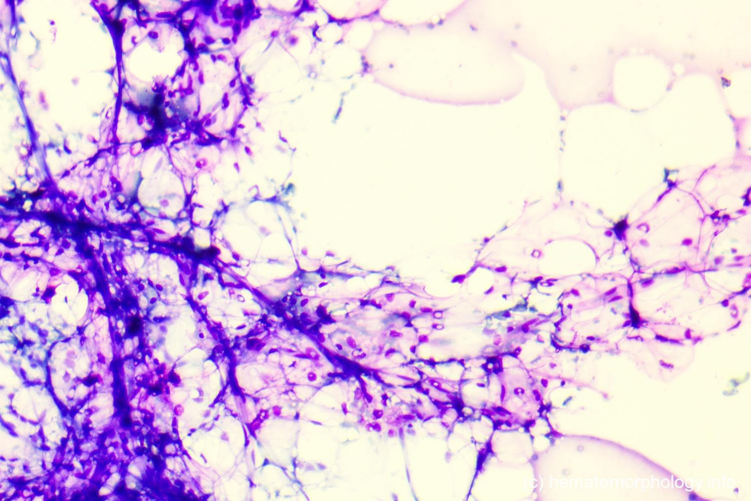 Aplastische anemie. A aplastische anemie.