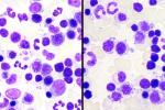 dysplasie-erytropoiese-BM-102